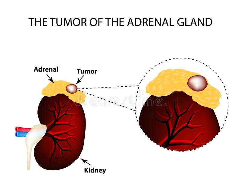Een tumor van de bijnier Structuur van de nieren Vectorillustratie op geïsoleerde achtergrond stock illustratie