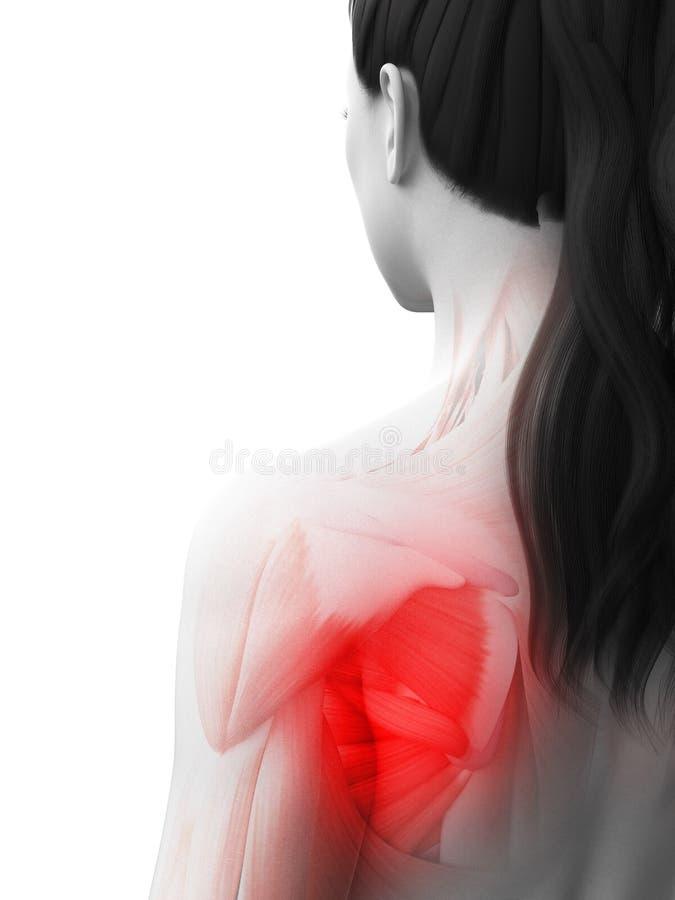 Een vrouw die een pijnlijke schouder hebben royalty-vrije illustratie