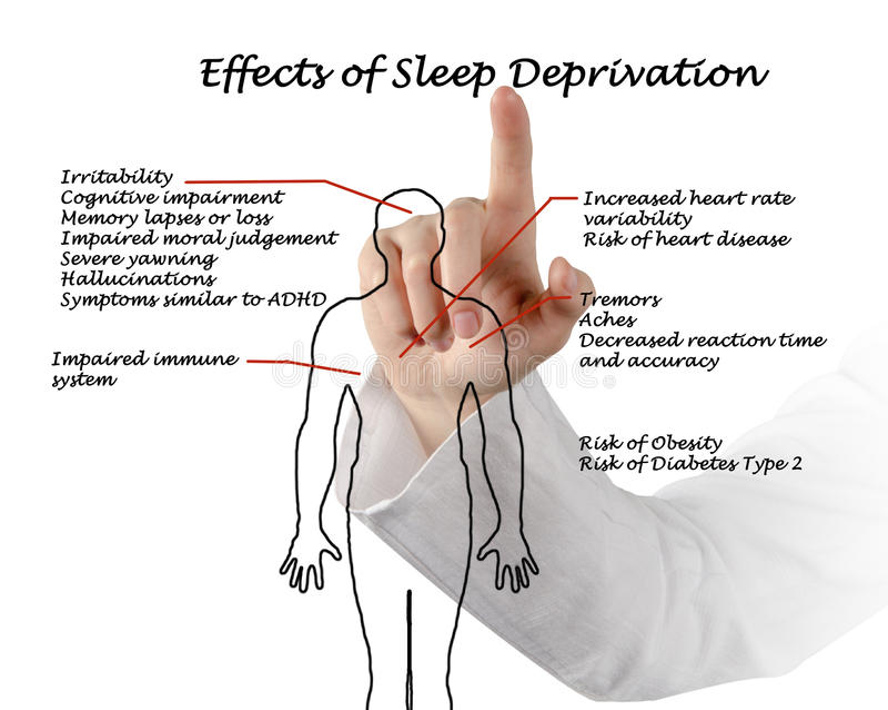 Efectos de la privación del sueño foto de archivo