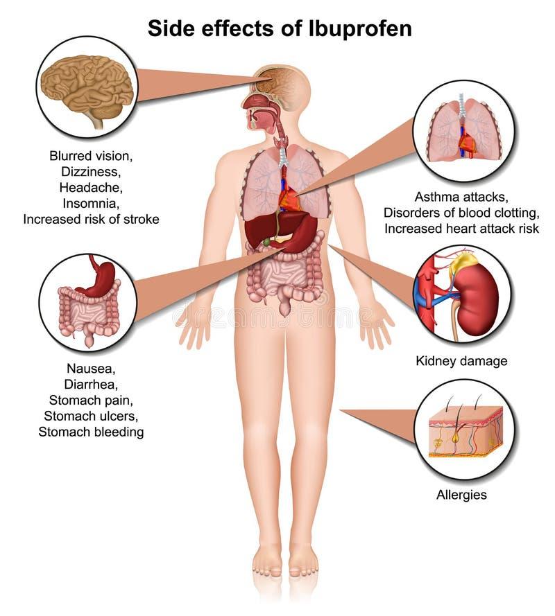 Efekty uboczni ibuprofen 3d medyczna ilustracja na białym tle royalty ilustracja