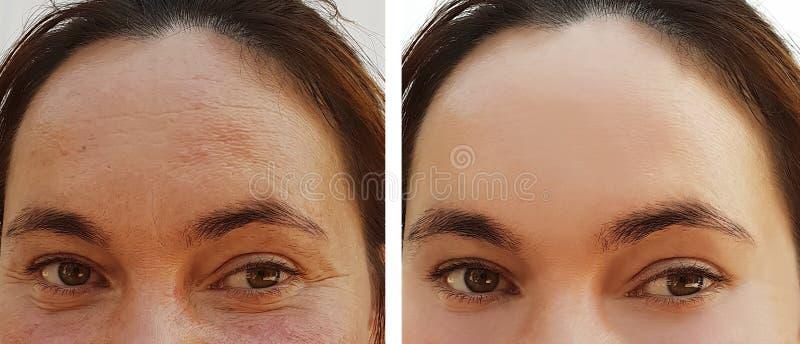 Effekt för dermatologi för kvinnaögonskrynklor retuscherar före och efter skönhetsmedlet som hydratiserar tillvägagångssätt royaltyfri bild