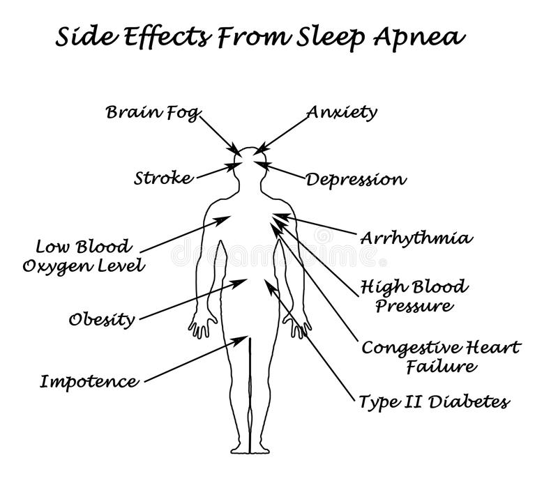 Effekte von Schlaf Apnea vektor abbildung