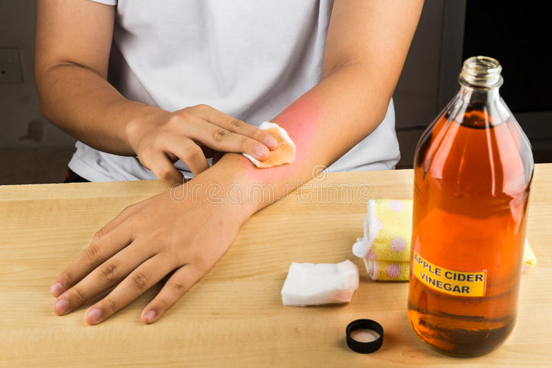 Effektives Naturheilmittel des Apfelweinessigs für Hautjucken, fung lizenzfreie stockbilder