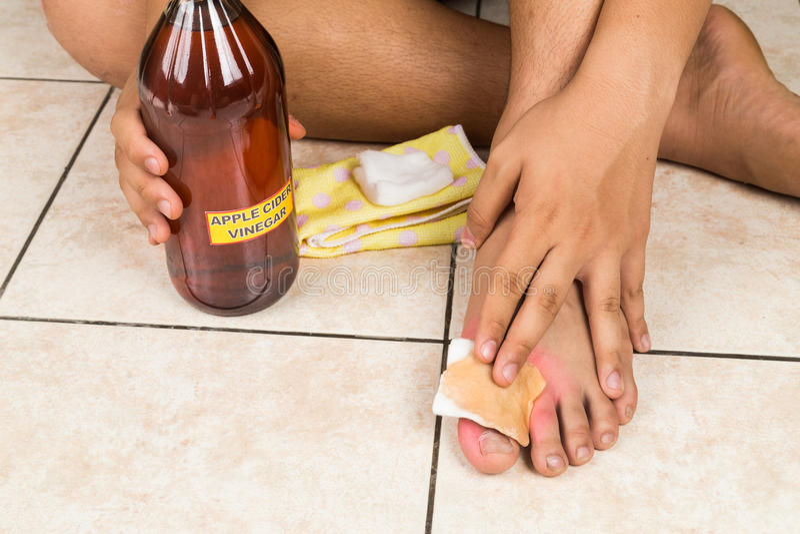 Effektives Naturheilmittel des Apfelweinessigs für Hautjucken, fung stockfoto