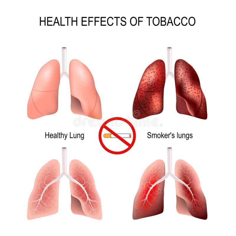 Effetti sulla salute di fumo illustrazione di stock