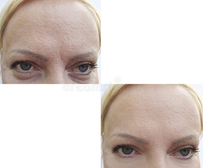 Effetto di sollevamento di ringiovanimento delle grinze del fronte della donna prima e dopo la correzione fotografia stock