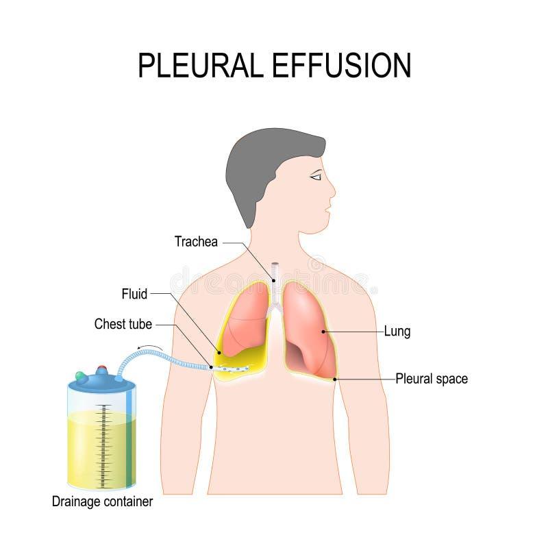 Effusion pleurale Traitement de hydrothorax de tension illustration libre de droits
