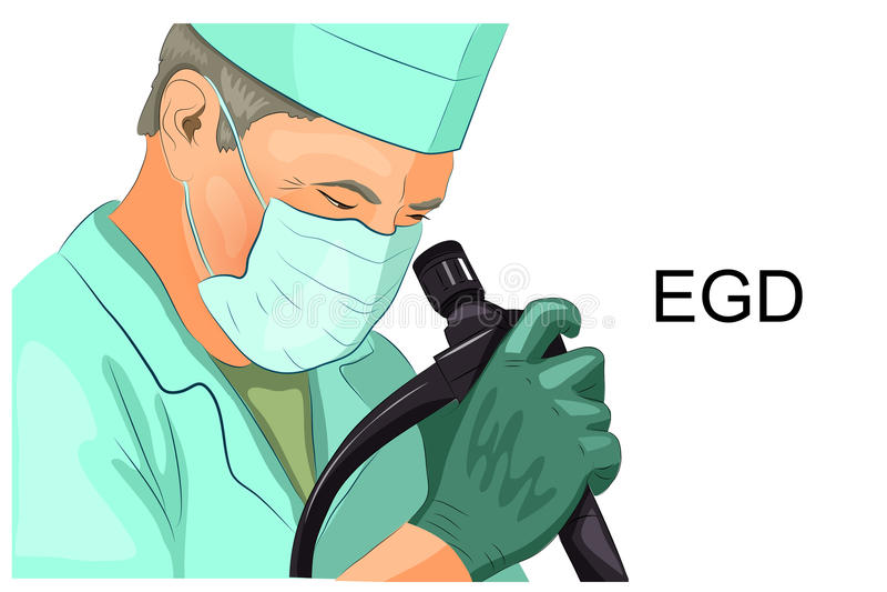 EGD, diagnosi dell'ulcera gastrica illustrazione vettoriale