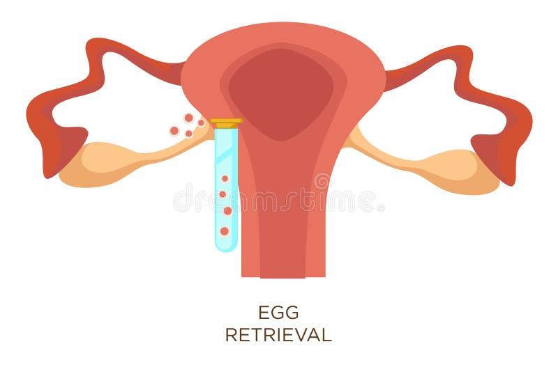 Egg retrieval stage in vitro fertilization artificial insemination vector illustration