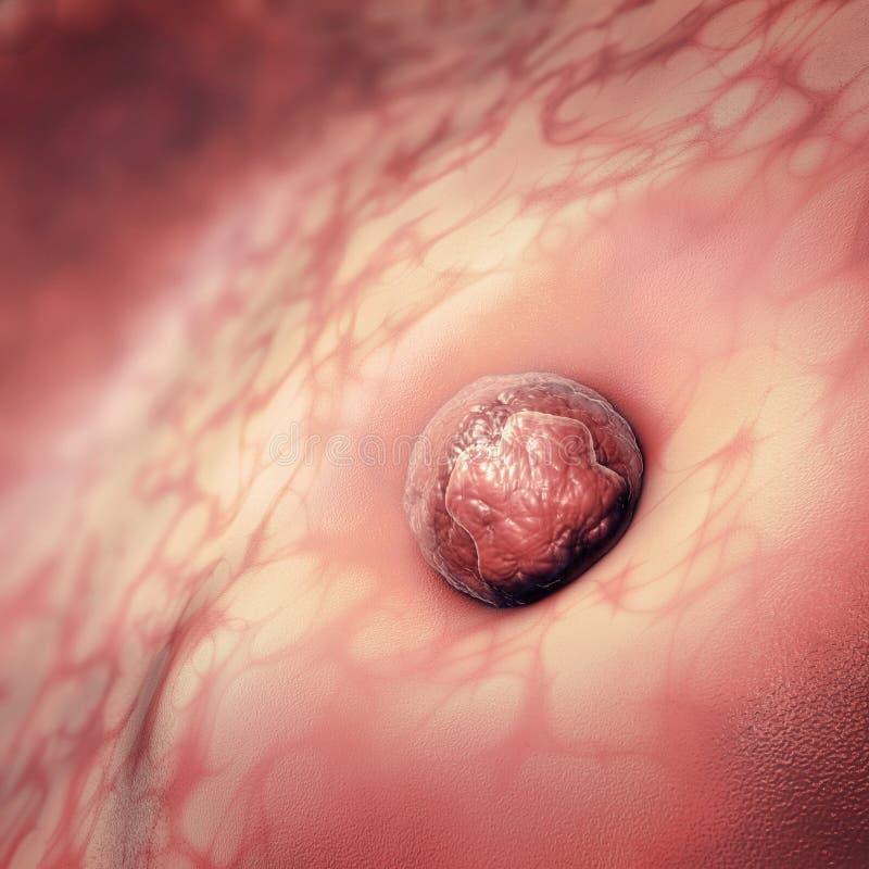 eicel of ovum het plakken aan de baarmoeder vector illustratie