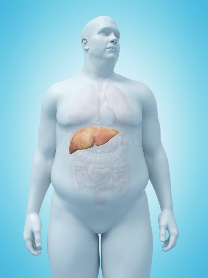 Ein Übergewicht bemannt Leber vektor abbildung
