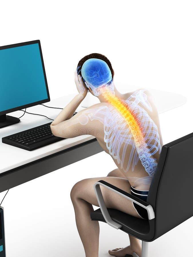 Ein Büroangestellter, der Rückenschmerzen hat vektor abbildung