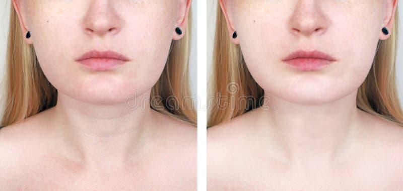 Ein Cosmetologist bereitet den Patienten für Chirurgie vor: Konturnplastik der Hals-, mesotherapy oder Botulinumtherapie Falten u lizenzfreie stockfotos