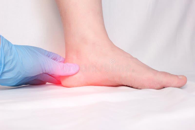 Ein Doktor in den medizinischen Handschuhen überprüft den Fersensporn, die Schmerz im Fuß und die Ferse eines Patienten, plantar  stockfotos