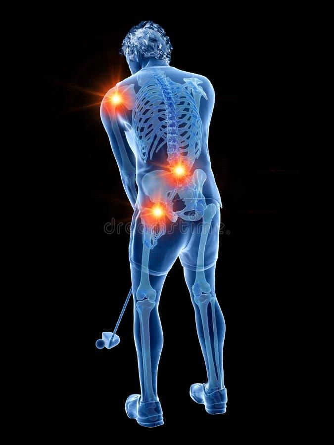 Ein Golfspieler mit schmerzlichen Gelenken lizenzfreie abbildung