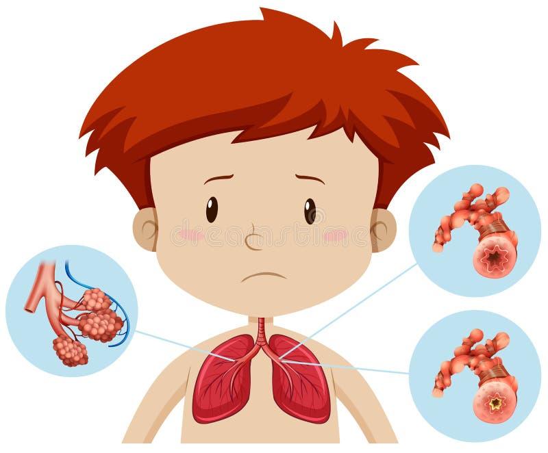 Ein Junge mit Bronchitis vektor abbildung
