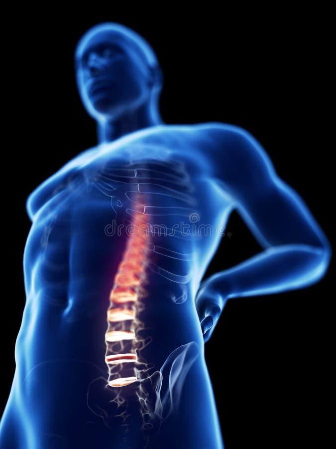 Ein Mann, der Rückenschmerzen hat stock abbildung