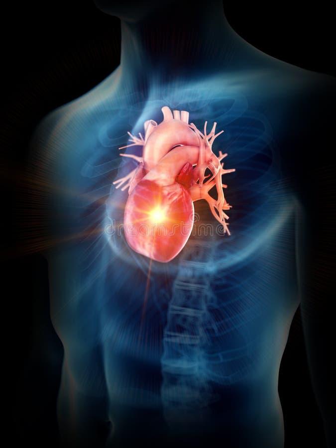 Ein schmerzliches Herz lizenzfreie abbildung