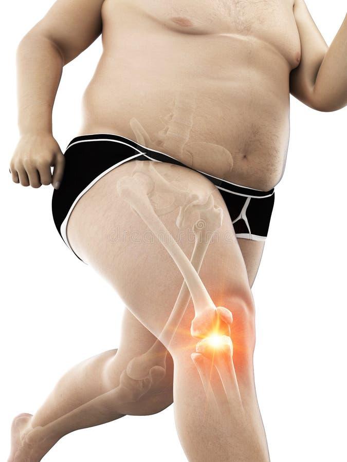 Ein schmerzliches Knie der beleibten L?ufer lizenzfreie abbildung