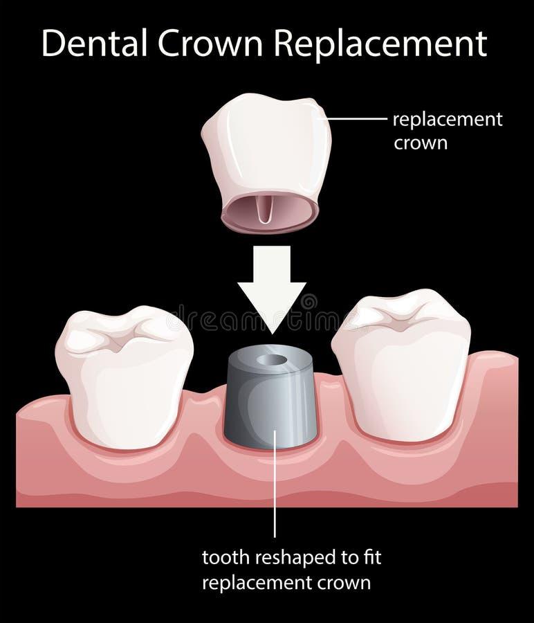 Ein zahnmedizinischer Kronenersatz stock abbildung