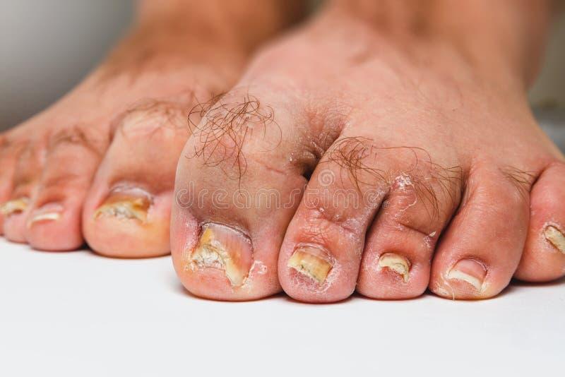 Zehennagel-Pilz stockfoto. Bild von fußarzt, medizinisch
