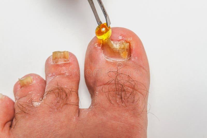 Zehennagel-Pilz stockfoto. Bild von zehennagel, ekel