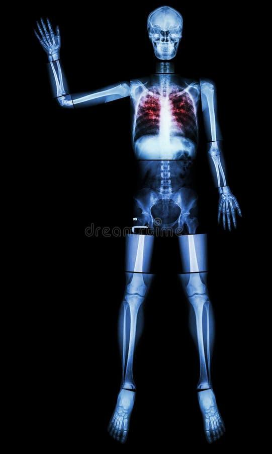 Eindetb (Tuberculose) (het Menselijke been heft hand op) royalty-vrije stock foto