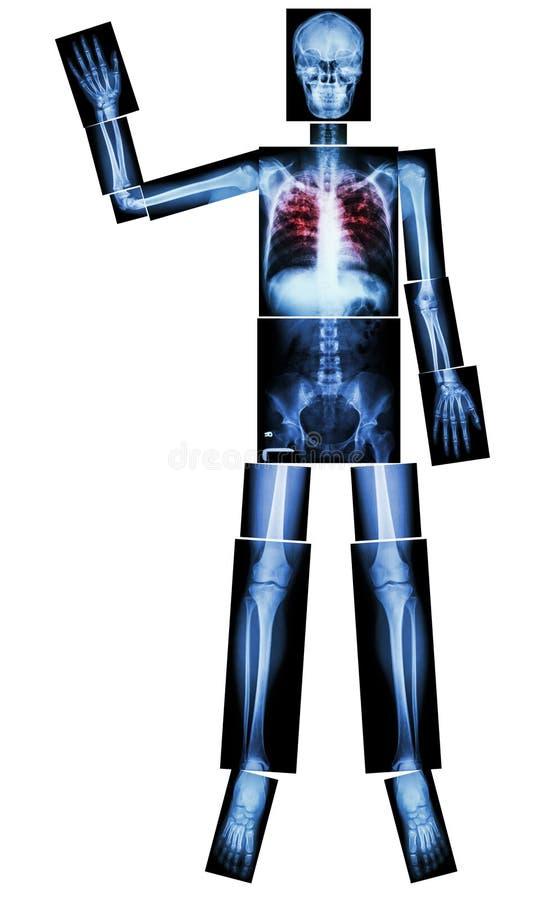 Eindetb (Tuberculose) (het Menselijke been heft hand op) (Geheel lichaam: hoofd van de de stekelschouder van de schedelhals van d royalty-vrije illustratie