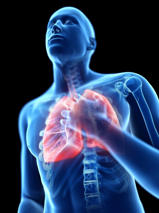 Eine entflammte Lunge stock abbildung