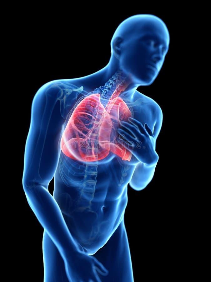 Eine entflammte Lunge lizenzfreie abbildung