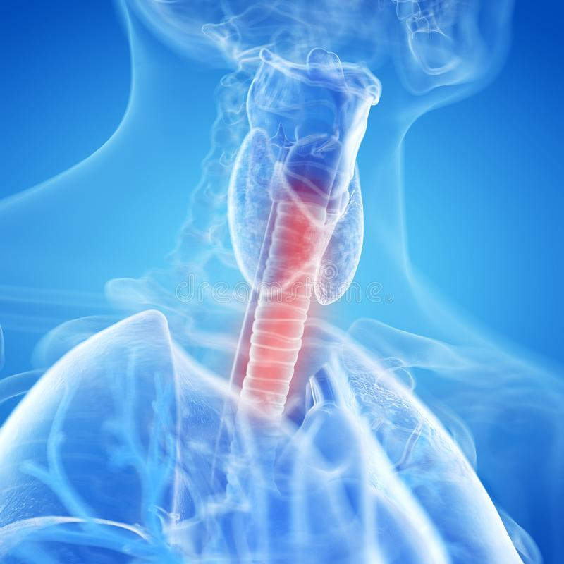 Eine entflammte Trachea lizenzfreie abbildung