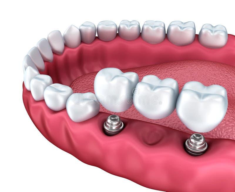 Eine Großaufnahme von unteren Zähnen und von Zahnimplantaten lizenzfreie abbildung