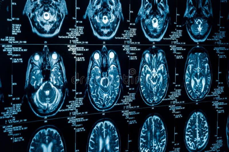 Eine Gruppe CAT-Scans des menschlichen Gehirns lizenzfreie stockfotos