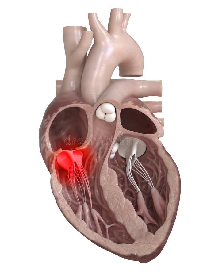 Eine kranke Herzklappe lizenzfreie abbildung