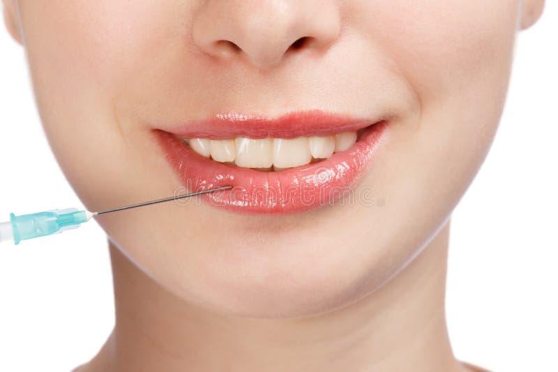 Einspritzung der Lippenplastischen chirurgie auf Gesicht der jungen Frau stockbild