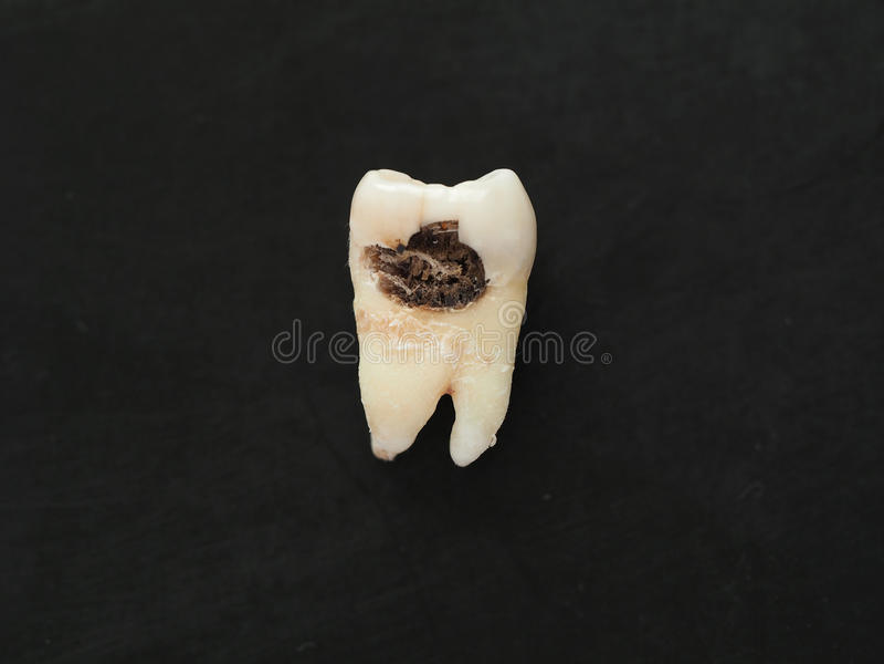 Einzelner schlechter Zahn der Nahaufnahme mit großem Loch der Karies auf schwarzem Hintergrund Ungesunde Zähne lizenzfreie stockfotos