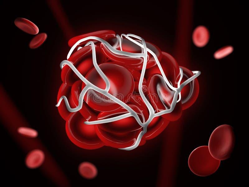 ejemplo 3d del ejemplo de un coágulo de sangre, de un trombo o de un émbolo con los glóbulos rojos coagulados ilustración del vector