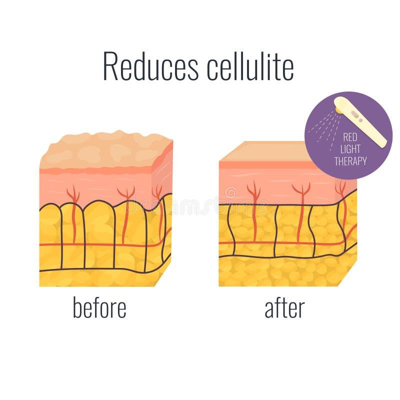 Ejemplo de la célula con el cellullite y fuera libre illustration
