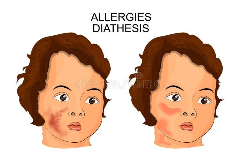 Ejemplo de la cara de una diátesis o de una alergia sufridora del niño stock de ilustración