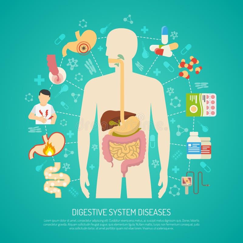 Ejemplo de las enfermedades del sistema digestivo ilustración del vector