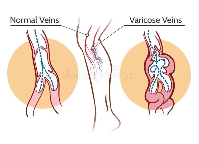 Ejemplo de las varices ilustración del vector