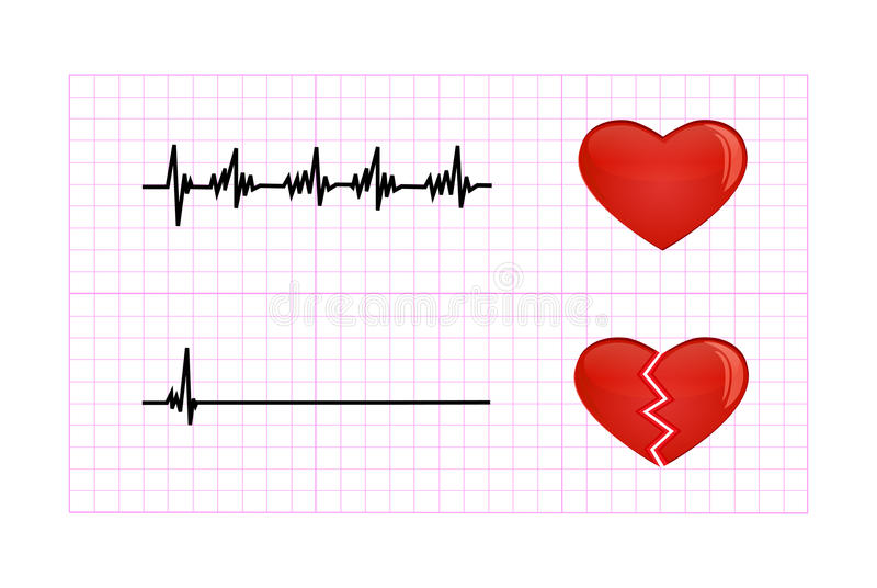 Ejemplo Del Diagrama Del Latido Del Corazón Ilustración del Vector ...