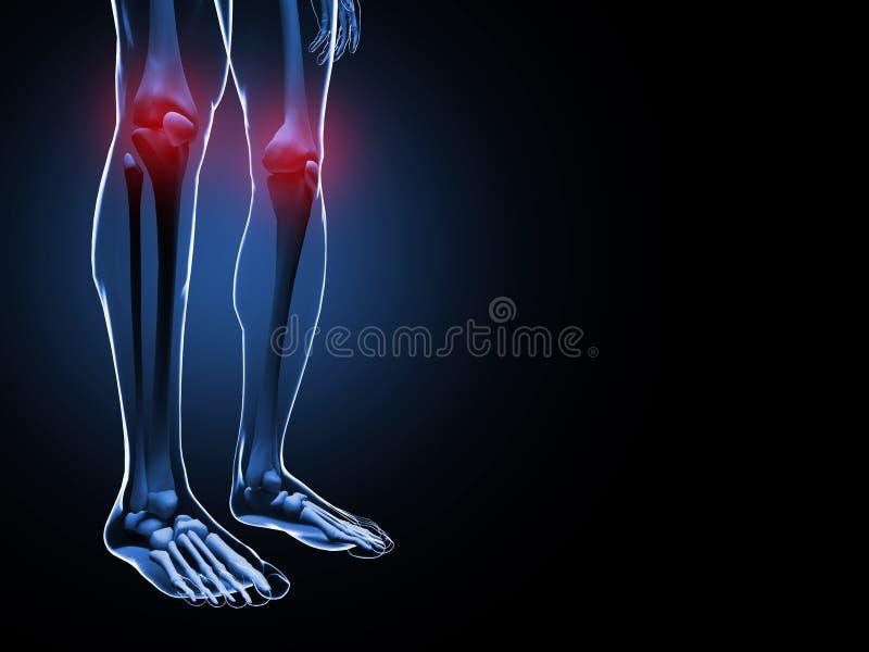 Ejemplo del dolor de la rodilla fotos de archivo