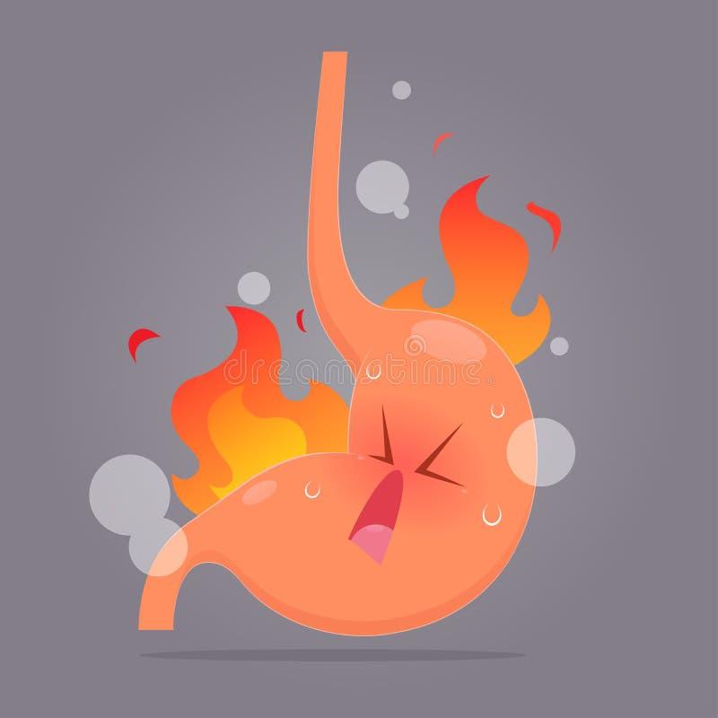 Ejemplo del reflujo ácido o del ardor de estómago stock de ilustración