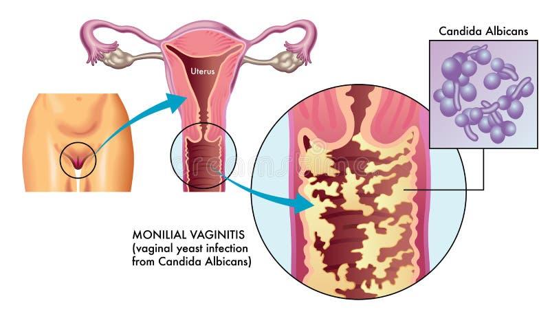 Ejemplo del vaginitis de Monilial ilustración del vector