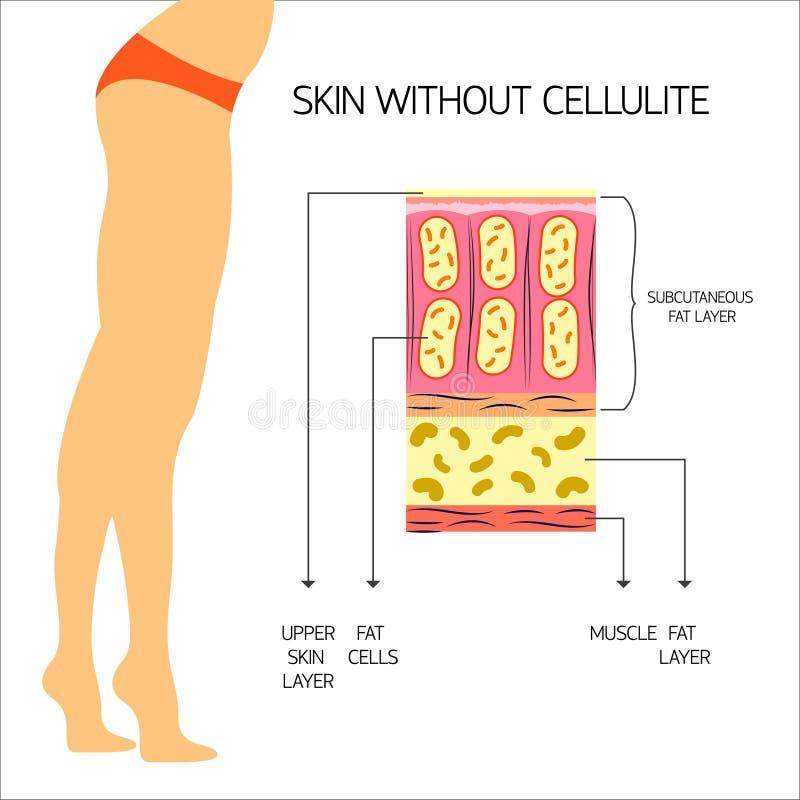 Ejemplo del vector de la celulitis ilustración del vector