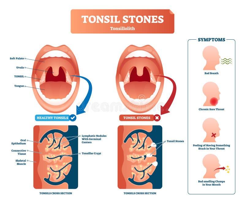 Ejemplo del vector de las piedras de la amígdala Síntomas médicos etiquetados del tonsillolith stock de ilustración