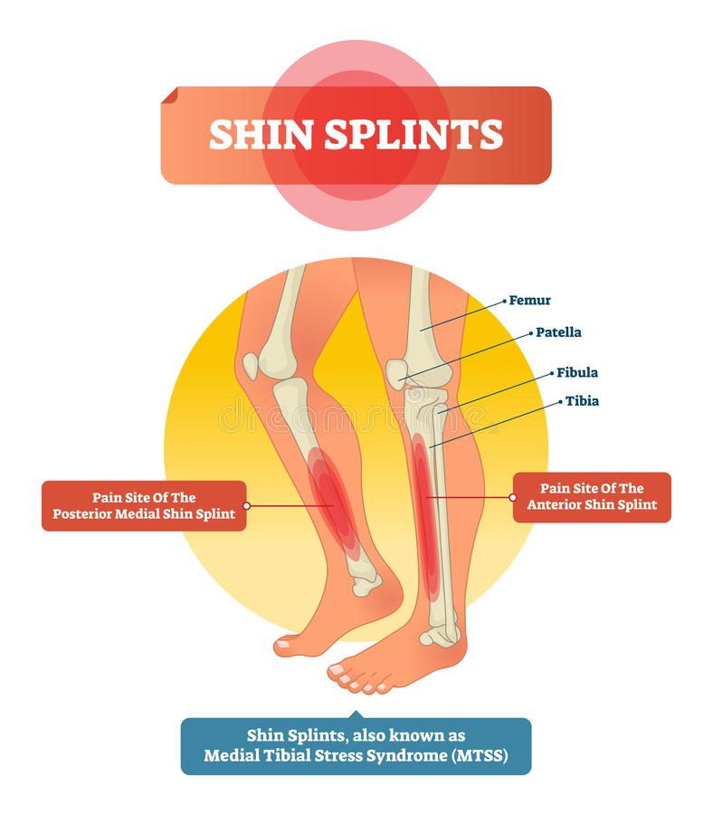 Ejemplo del vector de las tablillas de Shin Trauma del deporte del músculo de la pierna y dolor óseo libre illustration