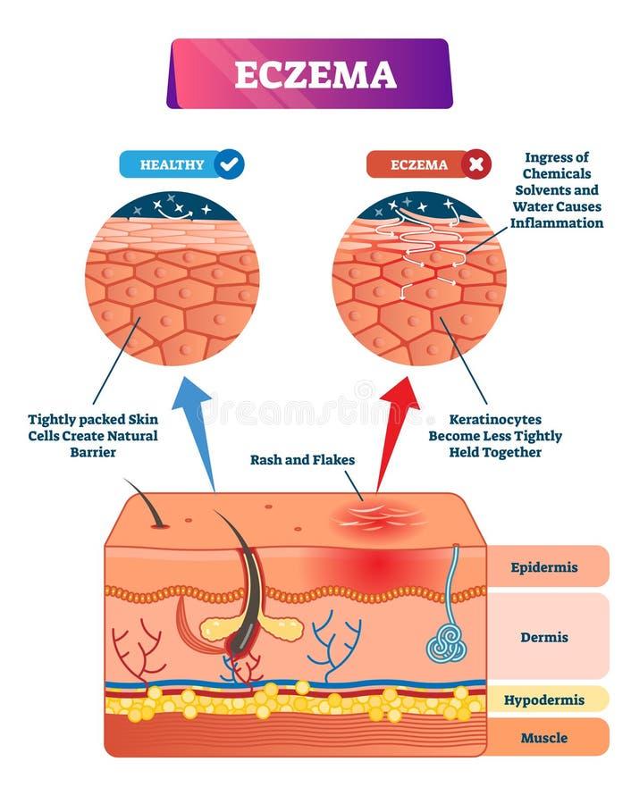 Ejemplo del vector del eczema Estructura anatómica etiquetada esquema comparativo ilustración del vector