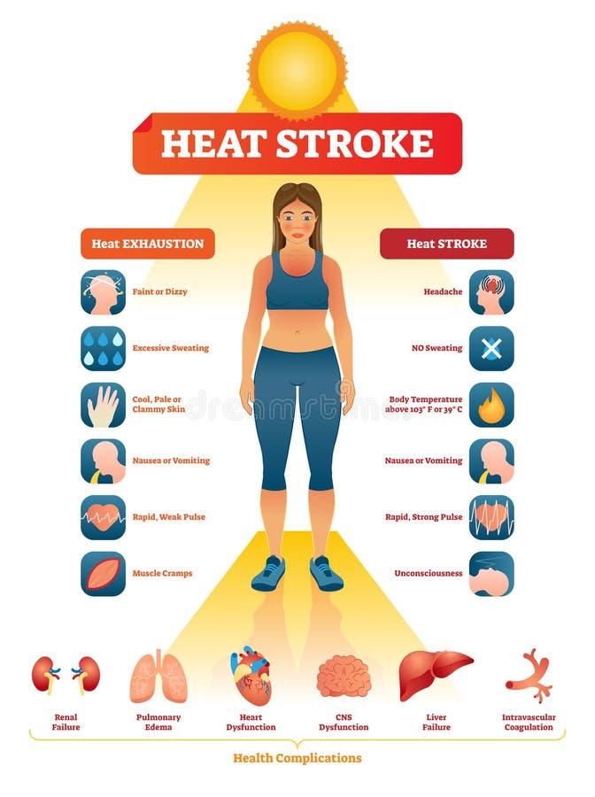 Ejemplo del vector del golpe de calor Los síntomas del agotamiento etiquetaron la lista médica ilustración del vector